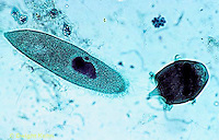 PR01-021x  Protozoa Didinium - eating paramecium - Didinium spp.  250x