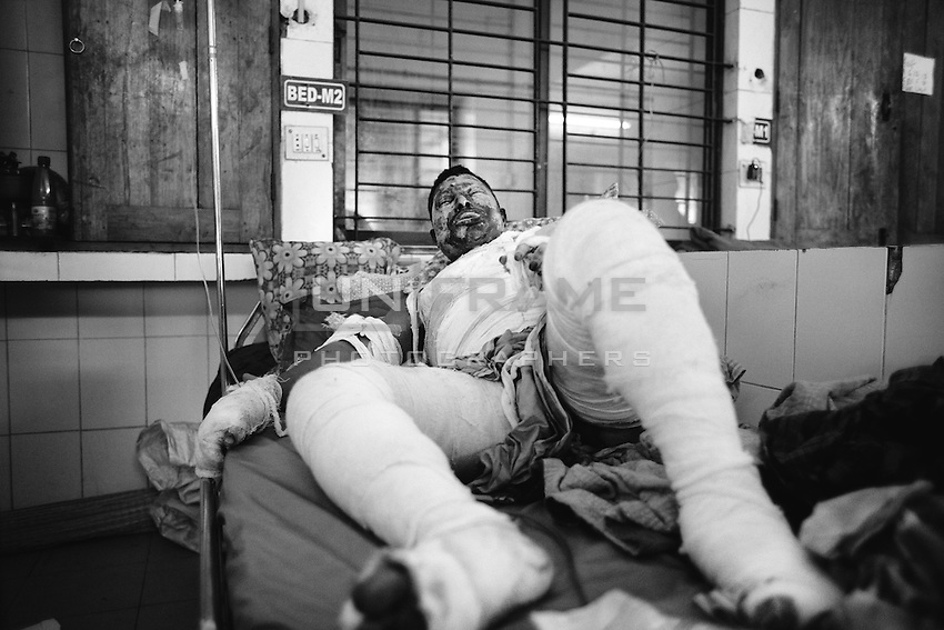 25 years old Truck helper Md. Majedul from Nouga. 90 precent of his body burnt when supportes of nationwide strike torched his truck on 21 Dec. 2013.