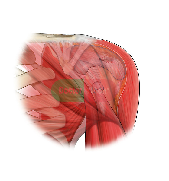 Supraspinatus Tear; this medical illustration illustrates a suprspinatus tear.