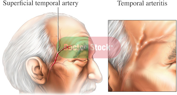 This exhibit shows the temporal region of an elderly male identifying the anatomical location of the superficial temporal artery. Next to that, is a detailed inset exhibiting the typical appearance with the enlarged artery exhibiting temporal arteritis.