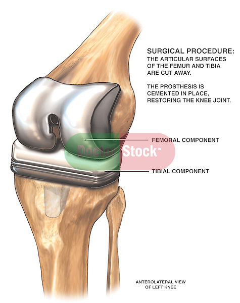 This medical exhibit pictures a proposed left total knee joint replacement from an antero-medial (front, inner side) view. The surgical procedure describes cutting away the articular surfaces of the femur and tibia and cementing of the prosthesis in place to restore the knee joint. Labeled structures on this graphic include the femoral and tibial components of the prosthesis.