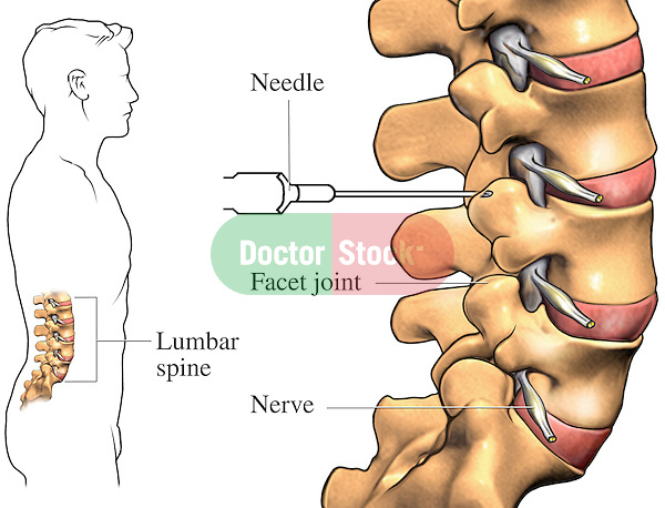 This medical exhibit illustrates the injection of a local anaesthetic at the facet joint that interrups the conduction of nerve impulses.