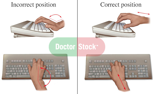 This medical illustration series depicts the proper and improper methods for keyboard typing in order to prevent carpal tunnel syndrome, or median nerve compression in the wrist.