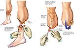 Below the Knee Amputation (Amputated Leg).