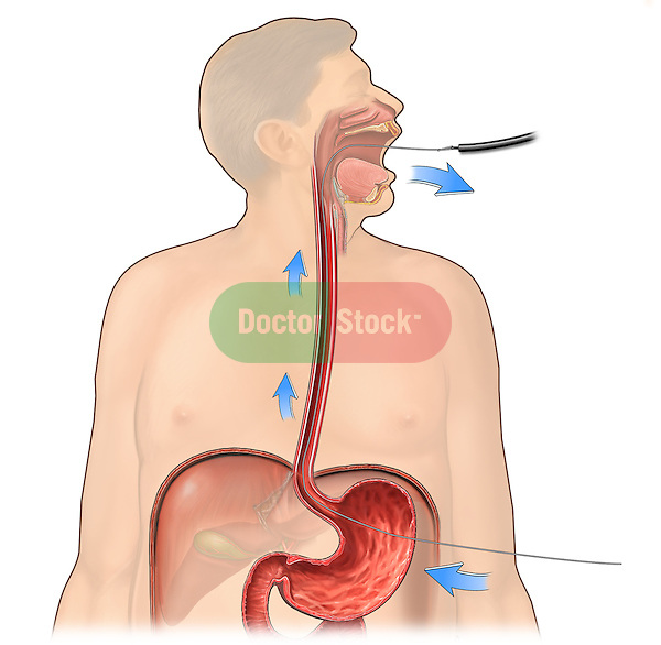 This stock medical image reveals the Gauderer-Ponsky technique showing the endoscopic retrieval of a guidewire from the lateral abdominal wall and stomach back out the pateint's esophagus and mouth.