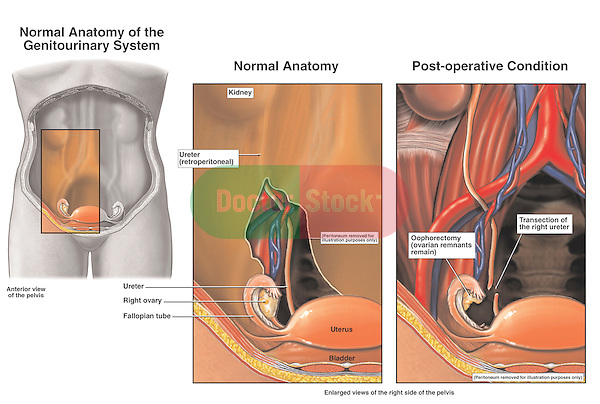 Ovaries - Laparoscopic Oophorectomy with Iatrognic (Physician-related) Transection Injury of the Right Ureter.
