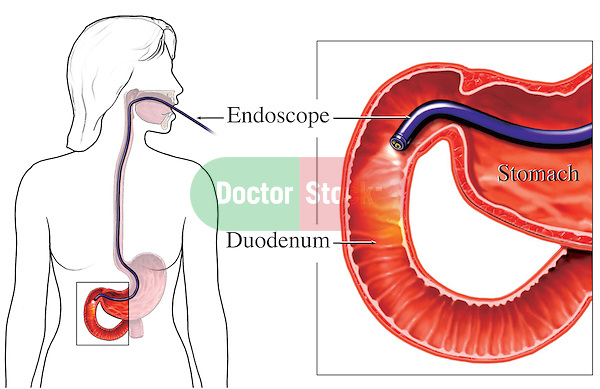This medical illustration depicts the correct placement in an Upper GI endoscopy. A magnified inset of the duodenum and stomach is included.