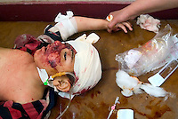 Baghdad, Iraq, April 5, 2003.A doctor of the Al Kindi hospital emergency ward searches for vital signs on Mustapha Odei, 4, eviscerated and criticaly injured by shrapnel in the head, at Ubeidi by a US bomb. According to the doctors in attendance he has no chance to survive. More than 70 US bombardment victims were admitted in less than 2 hours after a B52 carpet bombing on the Northern outskirts, about a fifth of these were military personel.
