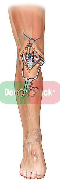 Patellar Tendon and Retinaculum Tears; this medical illustration depicts patellar tendon and retinaculum tears of the knee.
