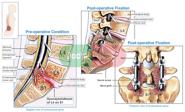 Spinal Fusion Surgery - L5-S1 Spondylolisthesis with Surgical Repair of the Spine.