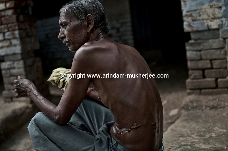 Chotelal Nishad (60) of Seikhpur in Jajmau area suffering from an unknown skin disease since last 4 years. It started in the form of a patch on his abdomen and now has spread to his back. He suffers with a continuous burning sensation but the local doctors have failed to give him a remedy. He used to be a farmer and was affected when he used to work in the farm land which is irrigated by waste water from the tanneries containing harmful chemicals including chromium. Kanpur, Uttar Pradesh, India, Arindam Mukherjee
