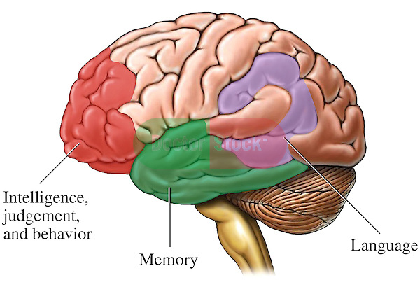 This medical exhibit depicts a lateral (side) view of the brain with color-coded regions indicating the areas of the cerebral cortex commonly affected by Alzheimer's Disease. Affected areas labeled on the cerebrum include portions of the frontal lobe governing intelligence, judgment and social behavior.  Also illustrated are affected areas of the temporal and parietal brain lobes that govern memory and language.