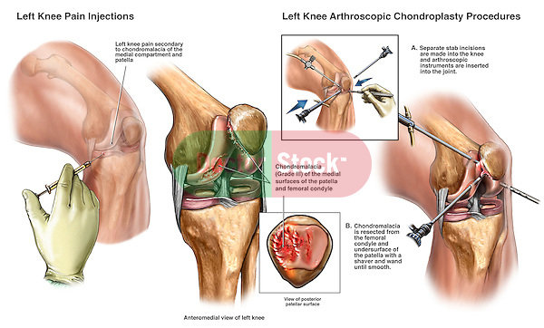 Knee Injury - Steroid Injections with Chondroplasty of the Patella and Femoral Condyle. This custom medical exhibit features multiple left knee injuries and surgeries. Key elements described are: Steroid injections for relief of knee pain and Arthroscopic chondroplasties (shaver resection) of patellar and femoral chondromalacia.