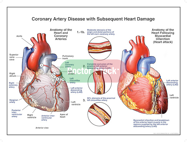 Coronary Artery Disease with Subsequent Heart Attack. Clear depiction showing blocked coronary arteries, including the left main coronary, left anterior descending (LAD) and the left circumflex. Each artery shows evidence of severe occlusion and stenosis. The resulting myocardial infarction, or heart attack, is fatal.