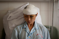 25 year old Liu Huiling recovers in the Number 2 Hospital in Urumqi. She is a kindergarden teacher who was pulled off a bus and beaten by a mob of Uighurs on the 5th July. Ethnic violence between the Uighur and Han Chinese erupted in the city a few days earlier..