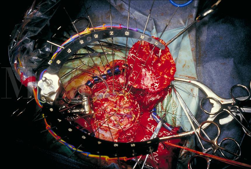 Brain surgery for epilepsy.