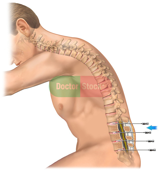 This stock medical image reveals a lateral view of a white male and lateral spine with sagittal inset of discogram needles inserted at the L2-3, L3-4, L4-5 and L5-S1 levels..