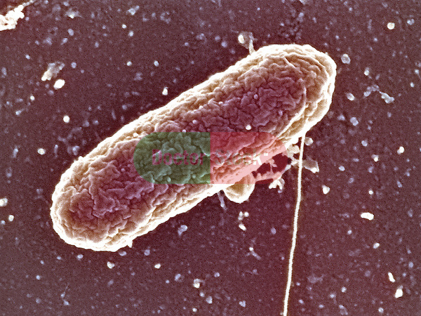 Bacteria, Salmonella heidelberg bacteria, causes salmonellosis, most commonly related to under-cooked eggs, 50,000x magnification
