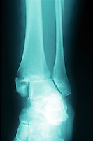 An x-ray of an ankle ( pott's ) fracture. The common low boot injury. It is a fracture of the fibula near the ankle. It is also called Dupuytren's fracture. This image may only be used to portray the subject in a positive manner..©shoutpictures.com..john@shoutpictures.com