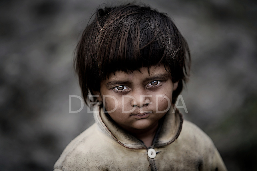A young girl, with her face and jacket covered in dirt, living in poverty in a rural area near Pokhara, Nepal.