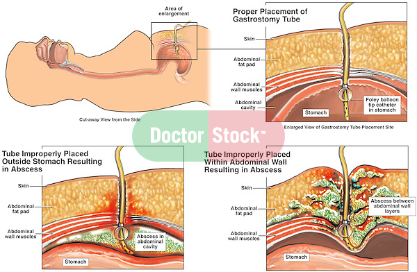 Proper vs. Improper Placement of Gastrostomy Tube and Post-operative Complications.