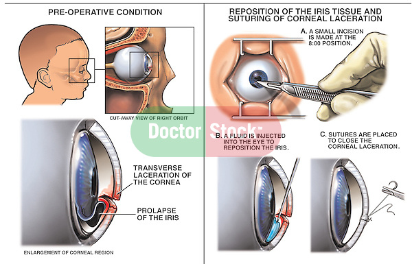 Post-accident Right Eye Injury with Surgical Repairs
