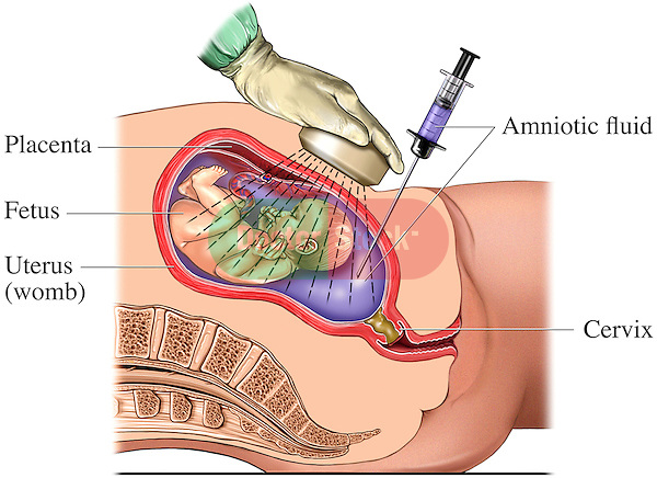 This medical exhibit depicts an amniocentesis pregnancy test procedure showing needle aspiration of amniotic fluid from a pregnant uterus.  Labeled structures include the placenta, fetus, uterus (womb), amniotic fluid and cervix.