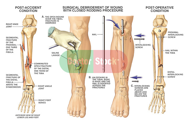 Fractured Tibia and Fibula (Broken Lower Leg Bones) with Fixation Surgery. The medical drawing accurately depicts post-accident fractures of the right tiba and fibula with surgical fixation via placement of an intramedullary tibial nail, and proximal and distal interlocking screws.