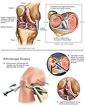Chondromalacia with Arthroscopic Knee Surgery. This medical exhibit illustrates the arthritic condition of the right knee: Grade II degenerative changes of the femoral condyles and tibial plateau and the arthroscopic surgical steps involved debridement of the menisci.