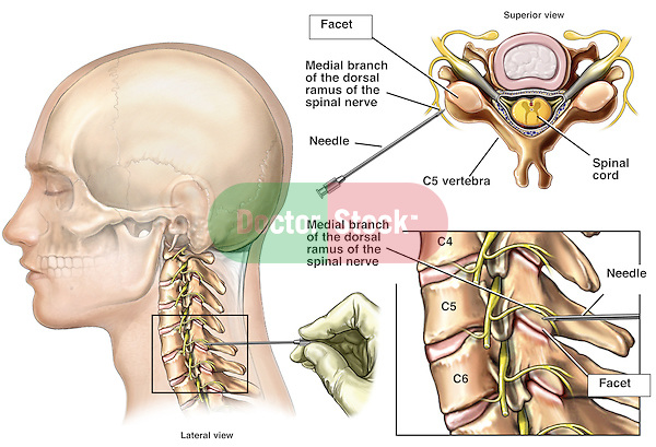 This medical exhibit accurately depicts the diagnosis of cervical facet joint pain. It features a lateral view of a male head and neck with the cervical spine appearing within the image. A surgeon inserts a diagnostic needle into the C5-C6 facet joint for pain testing. Two additional enlargements, from above and from the side, show a detailed view of the needle and its location in relation to the medial branch of the dorsal ramus of the spinal nerve, the spinal cord and other neural elements.