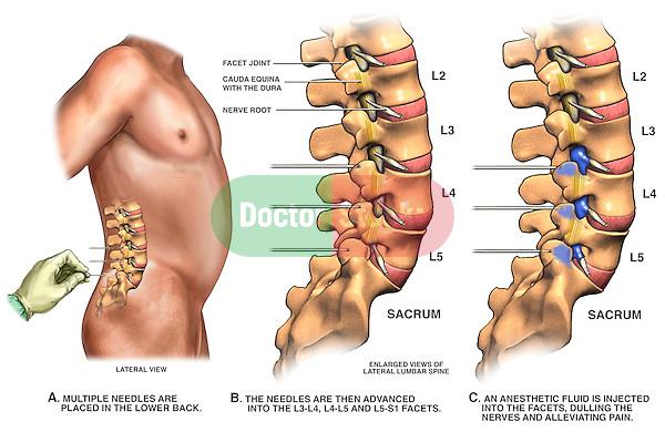 Low Back Pain Management - Lumbar Facet Joint Nerve Block.