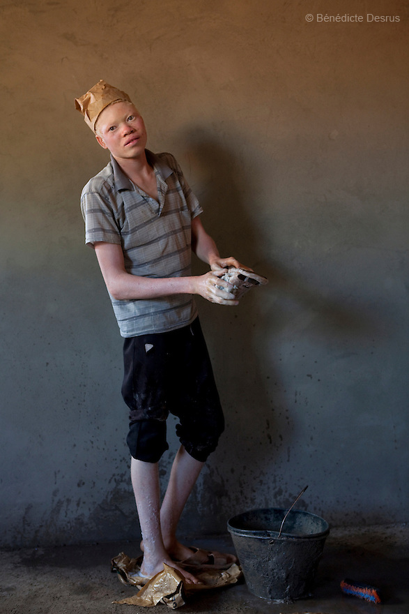 Portrait of Simon John, a 18 year old Sudanese albino from Yambio, Western Equatoria (Sudan).<br /> <br /> Simon has no parents because his father and mother died during the war so he had to take care of himself. He works in construction. He says he works in the hot sun all day long, but he has no choice because he has to pay for his food, his school fee and his rent. Simon skin is badly damaged from the sun. His delicate skin is prone to infections and diseases if not taken care of. Albinism is a genetic condition caused by a lack of melanin in the skin, eyes and hair. Photo credit: Benedicte Desrus