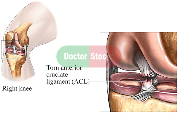 Knee - Tear of the Anterior Cruciate Ligament (Torn ACL).