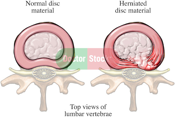 This full color stock illustraton compares a normal lumbar vertebral disc with a right paracentral herniated disc (disk) with nerve root impingement.