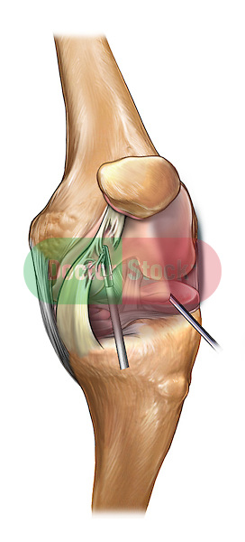 Medial Plica Resection; this medical illustration illustrates medial plica resection to the knee during an arthroscopic surgical procedure.