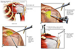 Shoulder Impingement Syndrome with Surgical Repairs. Depicts acromioclavicular (ac) joint bone spurs and torn rotator cuff tendons repaired via arthroscopic surgery.