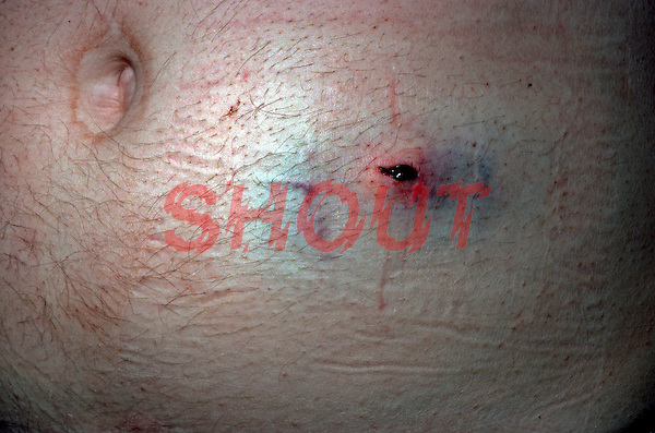 Penetrating injury of anterior abdominal wall. This image may only be used to portray the subject in a positive manner..©shoutpictures.com..john@shoutpictures.com