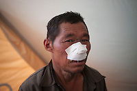 An earthquake victim is being treated in a medical camp in Sindhupalchok, outskirt of Kathmandu, Nepal. May 1, 2015