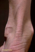SN45-002a  Human ankle