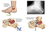 Fractured (Broken) Ankle Joint with Fusion Surgery. This custom medical exhibit features multiple images and an actual x-ray film print from a case involving the fusion of the subtalar joint region off the left ankle. Images include the following: 1. Initial incision and decortication of the subtalar joint, 2. Placement of fixation pins and screws, 3. Placement of bone graft to further aid in fusion. .