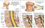 Spinal Fusion Surgery - C5-6 Disc Herniation with Discectomy