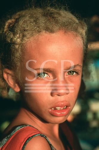 Brazil. Poor girl with missing tooth, green eyes and plaited hair.