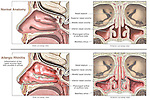 This medical exhibit contrasts normal nasal passage anatomy with allergic rhinitis in a series of four illustrations. The first two graphics depict cut-away views of the normal nasal area with labels for nasal septum, superior, middle and inferior nasal conchae, pharyngeal orifice of the auditory, (eustachian) tube, and the maxillary sinus. The next two graphics display the same views and labels, this time with captions indicating the inflammation of the nasal mucosa with exudate in the airway.