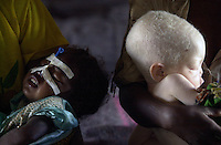 Leontina, left, 3, and Rosa Paulo, 4, an albino child, wait to be fed in a hospital in Kuito, some 310 miles southeast of Luanda, Angola on Wednesday, June 12, 2002. The hospital, with the assistance of Medecins Sans Frontieres, attends to approximately 5,000 people, of which the majority are young children, most of them children suffering from tuberculosis, malaria or malnutrition. Medecins Sans Frontieres, also known as Doctors Without Borders, warned that malnutrition in Angola was the worst its staff had seen since a devastating 1998 famine in Sudan. .Photo/Marcelo Hernandez