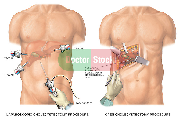 Gallbladder Surgery - Laparoscopic Cholecystectomy vs. Open Cholecystectomy.