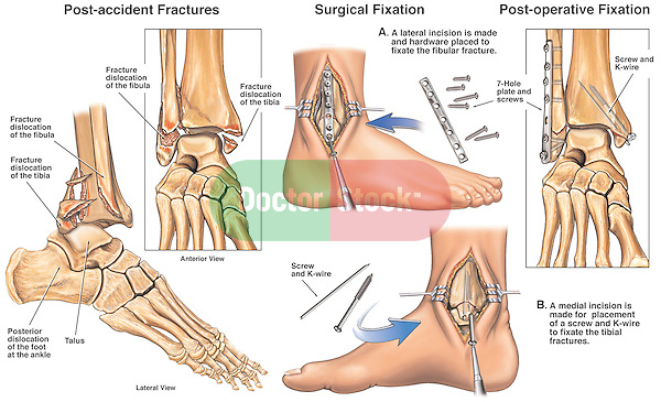 Ankle Surgery - Right Tri-malleolar Ankle Fractures with Placement of Fixation Plates.