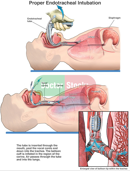 This full color custom medical exhibit features two views of an endotracheal  tube inserted through the mouth and down into the thorax of a male figure in supination (lying down). The first illustration shows the tube being correctly placed into the trachea. The second illustration shows the tube in place with its tip just above the carina where the trachea divides in the bronchi. An inset of the distal trachea and carina shows the tip and balloon of the tube in i ts correct place.