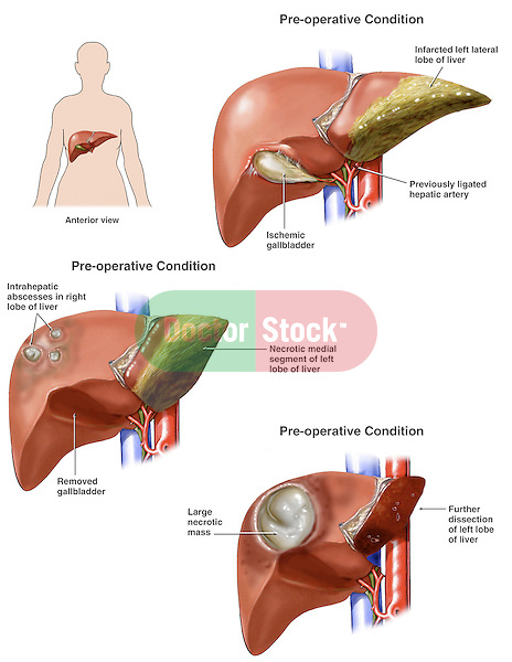 Progression of Liver Damage. Shows liver disease progressing from inflammation to abscess to a large necrotic tissue mass (necrosis).