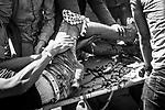 SHEJAIYA,GAZA: A Shebab got injured at his leg by a shot of an Israeli soldier on May 14, 2018 in Gaza City, Gaza. Israeli soldiers killed at least 52 Palestinians and wounded over a thousand as the demonstrations coincided with the controversial opening of the U.S. Embassy in Jerusalem.<br /> <br /> <br /> SHEJAIYA,GAZA: Un Shebab a été blessé à la jambe par un tir de l'armée israelienne le 14 mai 2018. Les soldats israéliens ont tué au moins 52 Palestiniens et en ont blessé plus d'un millier lors de manifestations qui coïncident avec l'ouverture controversée de l'ambassade des États-Unis à Jérusalem.