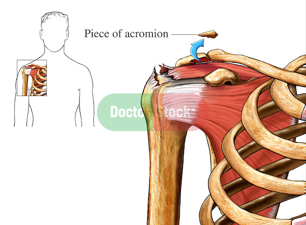 This medical exhibit very simply depicts the removal of a piece of acromion process bone fragment as part of an acromioplasty repair for a rotator cuff injury involving shoulder impingement syndrome.